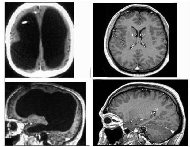 black smaller brains
